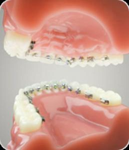 lingvalna ortodoncija nevidljiva proteza