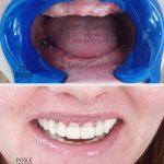 Keramicki-most-na-implantima