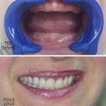 Zubni-implantati-i-proteze