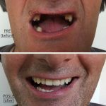 Zubni-implanti-i-parcijalna-proteza