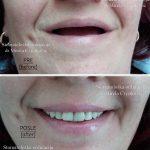 Zubni-implanti-i-totalna-proteza