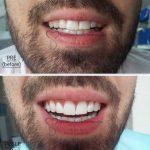 beljenje_zuba