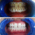 Izbeljivanje_zuba