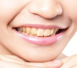 dubinsko-izbeljivanje-zuba