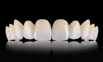 dentalni_mostovi