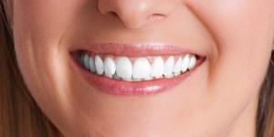 Beograd zubni implanti