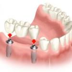 dental-implants-300x222