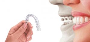 proteze za zube