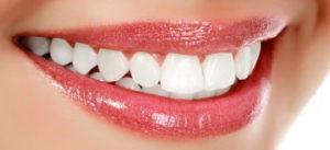 izbeljivanje zuba kućno