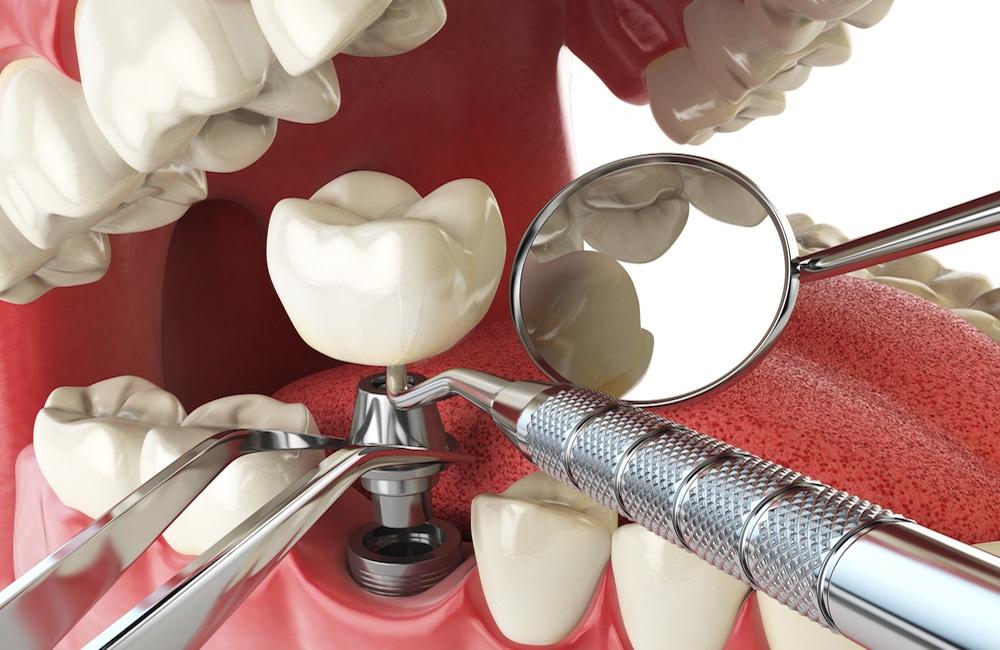 Zubni Implanti Procedura