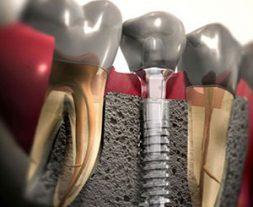 Zubni Implanti Ugradnja