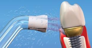 Zubni Implantati Održavanje