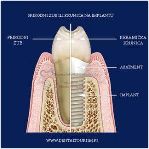 Šta su Zubni Implantati