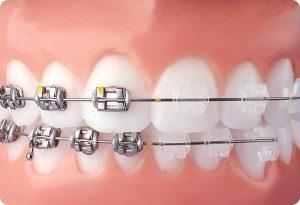 Ortodontski aparati