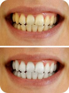 izbeljivanje-zuba-u-ordinaciji
