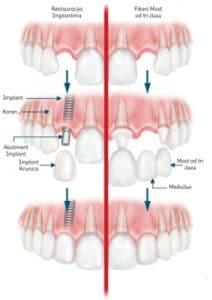 zubnih implantata