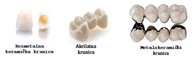 Vrste Zubnih Krunica