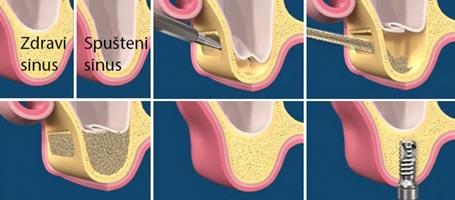 ugradnja veštačke kosti - augmentacija