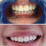 Izbeljivanje.zuba