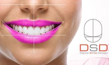 DSD planiranje osmeha