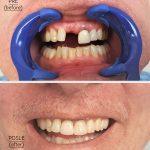 zubni_implant_keramicke_krunice