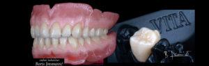 Proteze na zubnim implantima