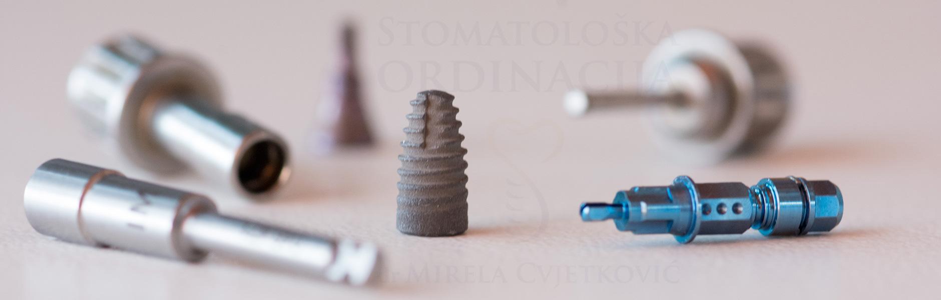 Sve što bi trebalo da znate o zubnim implantima!